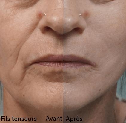 fils tenseurs visage photos. dernieres techniques rajeunissement visage 2019 per le meilleur chirurgien esthetique france