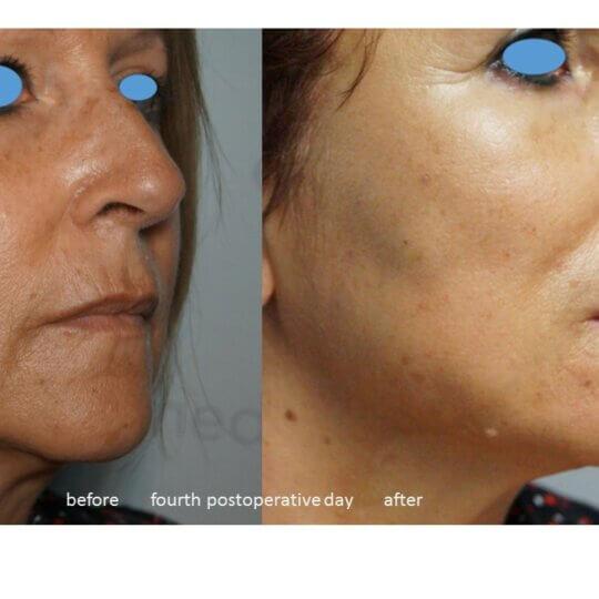 fils tenseurs - photo avant après - oval du visage